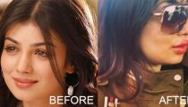 Ayesha Takia's Latest Pictures After Lip Surgery