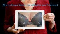 What is Breast Cancer, Identification and Treatment