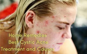 Cystic Acne Cure and Causes
